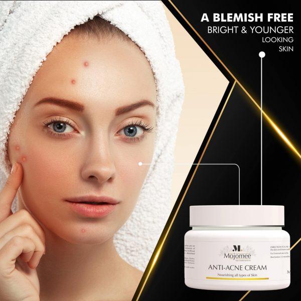 anti acne cream india
